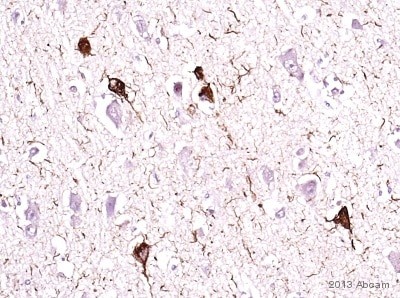 Immunohistochemistry (Formalin/PFA-fixed paraffin-embedded sections) - Anti-Tau (phospho T231) antibody [EPR2488] - BSA and Azide free (ab156624)