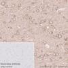 Immunohistochemistry (Formalin/PFA-fixed paraffin-embedded sections) - Anti-Tau (phospho T231) antibody [EPR2488] - BSA and Azide free (ab156624)