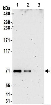 Immunoprecipitation - Anti-KIAA0020 antibody (ab156692)