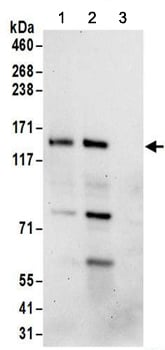 Immunoprecipitation - Anti-FAM120A/OSSA antibody (ab156695)