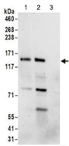 Immunoprecipitation - Anti-FAM120A/OSSA antibody (ab156695)
