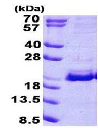 SDS-PAGE - Recombinant Human SRP19 protein (ab156714)