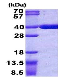 SDS-PAGE - Recombinant Human Acyl-coenzyme A Thioesterase 8 protein (ab156739)