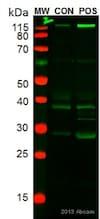 Western blot - Anti-CD163 antibody [OTI2G12] (ab156769)