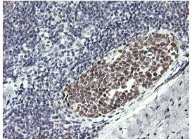 Immunohistochemistry (Formalin/PFA-fixed paraffin-embedded sections) - Anti-RFC4 antibody [OTI1A8] (ab156780)