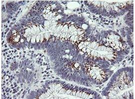 Immunohistochemistry (Formalin/PFA-fixed paraffin-embedded sections) - Anti-IL36 gamma/IL-1F9 antibody [OTI2F4] (ab156783)