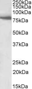 Western blot - Anti-BBS7 antibody (ab156808)