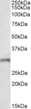 Western blot - Anti-FGF14 antibody (ab156824)