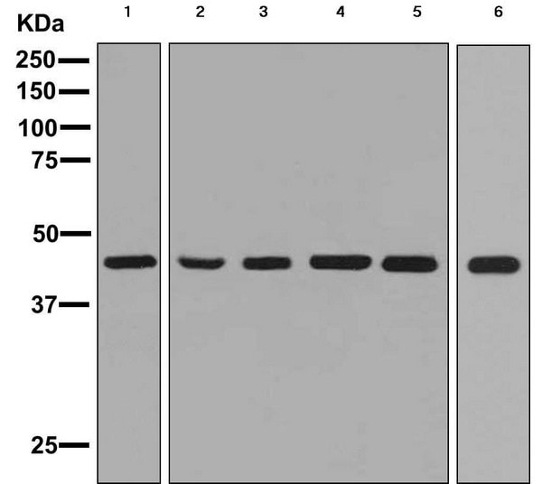 Western blot - Anti-Somatostatin Receptor 5 antibody [EPR7243] (ab156864)