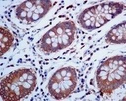 Immunohistochemistry (Formalin/PFA-fixed paraffin-embedded sections) - Anti-TRK fused gene antibody [EPR8766] (ab156866)
