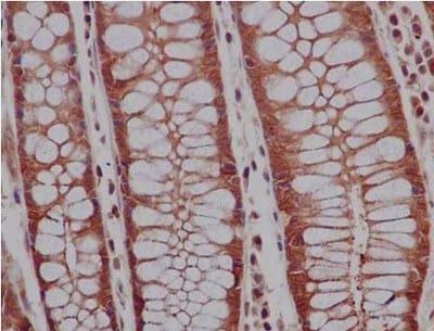 Immunohistochemistry (Formalin/PFA-fixed paraffin-embedded sections) - Anti-PRDM4/PFM1 antibody [EPR9432] (ab156867)