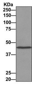 Immunoprecipitation - Anti-CHN 1 antibody [EPR9906] (ab156869)