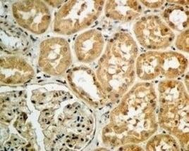 Immunohistochemistry (Formalin/PFA-fixed paraffin-embedded sections) - Anti-Argonaute-2 antibody [EPR10410] (ab156870)