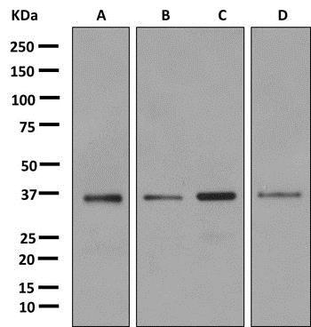 Western blot - Anti-LASP1 antibody [EPR11221] (ab156872)