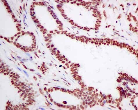 Immunohistochemistry (Formalin/PFA-fixed paraffin-embedded sections) - Anti-SF3A3 antibody [EPR10020] (ab156873)