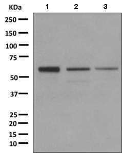 Western blot - Anti-DKC1/Dyskerin antibody [EPR10399] (ab156877)