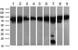 Western blot - Anti-DRP1 antibody [OTI4F6] (ab156951)