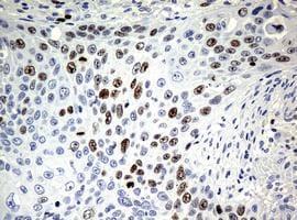 Immunohistochemistry (Formalin/PFA-fixed paraffin-embedded sections) - Anti-Ki67 antibody [OTI5D7] (ab156956)