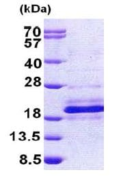 SDS-PAGE - Recombinant Human DPH4 protein (ab156961)