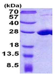 SDS-PAGE - Recombinant Human COMMD7 protein (ab156975)