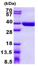 SDS-PAGE - Recombinant Human SULT1C4 protein (ab156984)