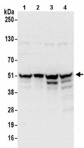 Western blot - Anti-RBP-2 antibody (ab157096)