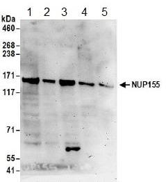 Western blot - Anti-NUP155 antibody (ab157104)