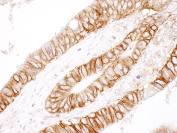 Immunohistochemistry (Formalin/PFA-fixed paraffin-embedded sections) - Anti-CD44 antibody (ab157107)