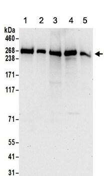 Western blot - Anti-PRPF8/Prp8 antibody (ab157114)