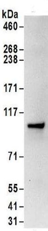 Immunoprecipitation - Anti-SRP68 antibody (ab157120)