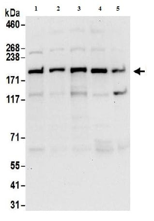 Western blot - Anti-Glutamyl Prolyl tRNA synthetase/PARS antibody (ab157122)