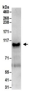 Immunoprecipitation - Anti-SP1 antibody (ab157123)