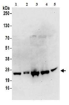Western blot - Anti-RPS9 antibody (ab157125)