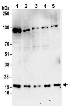 Western blot - Anti-RPL12 antibody (ab157130)