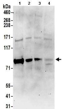 Western blot - Anti-RAVER1 antibody (ab157131)