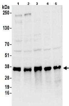 Western blot - Anti-HNRNPA0 antibody (ab157133)