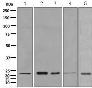 Western blot - Anti-SPC24 antibody [EPR11547(B)] (ab157184)