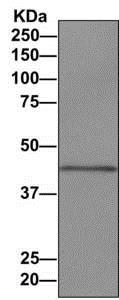 Western blot - Anti-ADRM1/ARM-1 antibody [EPR11449(B)] (ab157185)