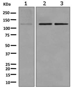 Western blot - Anti-TZP antibody [EPR10520] (ab157192)
