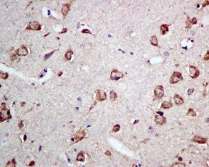 Immunohistochemistry (Formalin/PFA-fixed paraffin-embedded sections) - Anti-RPS15 antibody [EPR11104] (ab157193)