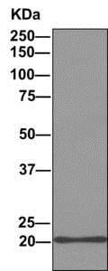 Immunoprecipitation - Anti-DCTN5 antibody [EPR11253] (ab157197)