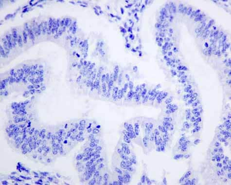 Immunohistochemistry (Formalin/PFA-fixed paraffin-embedded sections) - Anti-APOBEC2 antibody [EPR11285(B)] (ab157205)