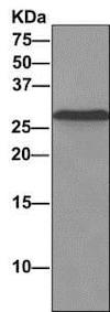 Immunoprecipitation - Anti-CHMP2B antibody [EPR10807(B)] (ab157208)