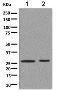 Western blot - Anti-HLA-DPB1 antibody [EPR11226] (ab157210)