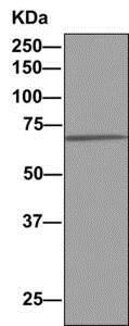Immunoprecipitation - Anti-PIGS antibody [EPR11275(B)] (ab157211)