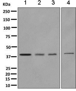 Western blot - Anti-Tropomodulin 3 antibody [EPR10303(B)] (ab157215)