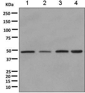 Western blot - Anti-DNAJA2 antibody [EPR11302(B)] (ab157216)