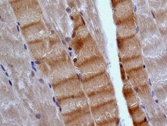 Immunohistochemistry (Formalin/PFA-fixed paraffin-embedded sections) - Anti-EB3 antibody [EPR11421(B)] (ab157217)