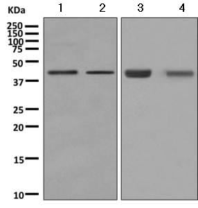 Western blot - Anti-ADRM1/ARM-1 antibody [EPR11450(B)] (ab157218)