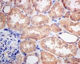 Immunohistochemistry (Formalin/PFA-fixed paraffin-embedded sections) - Anti-VPS35 antibody [EPR11501(B)] (ab157220)